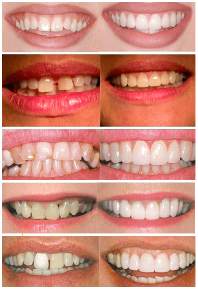 фото трещины зуба
