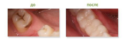 Боли в деснах при росте зубов мудрости